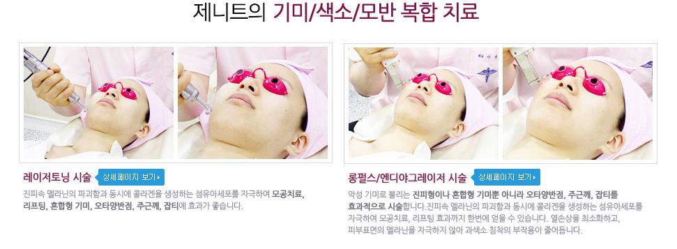 휴엠씨의 기미/색소/모반 복합치료