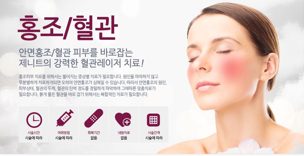 홍조/혈관 안면홍조/혈관 피부를 바로잡는 휴엠씨의 강력한 혈관레이저 치료!